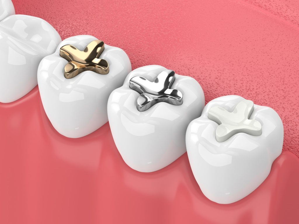 Illustration of a bottom row of teeth with different types of fillings applied