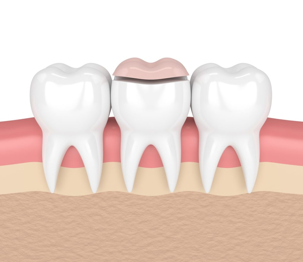 Illustration of three teeth in a row with a dental inlay applied to the middle tooth