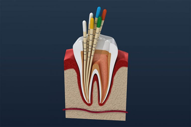 Illustration of tooth cross section with root canal therapy being performed